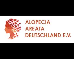 Alopecia Areata Deutschland