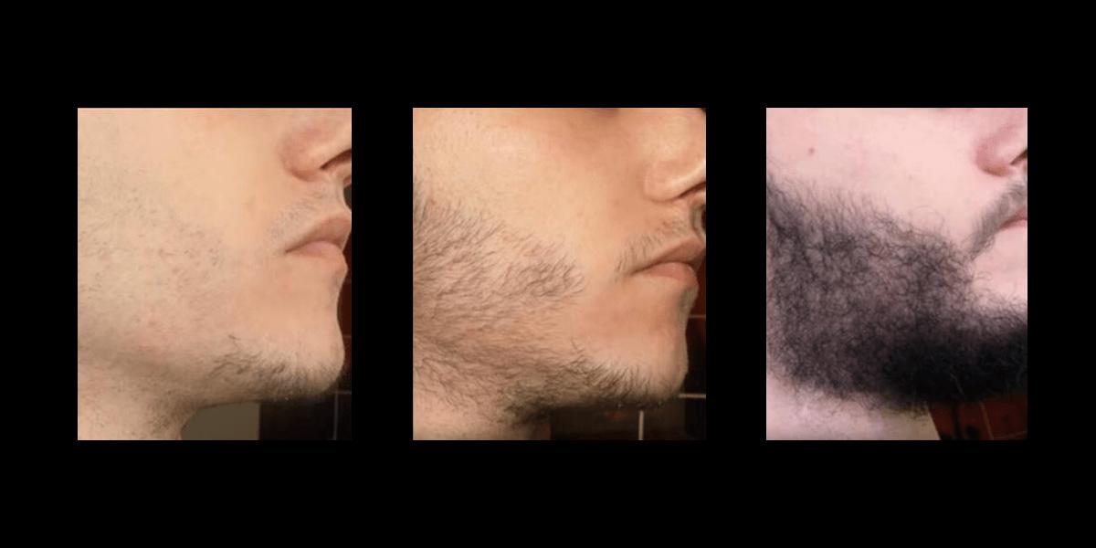 Minoxidil für mehr Bartwuchs