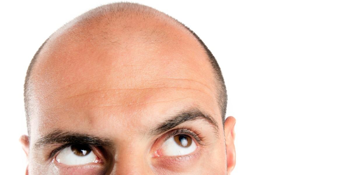 Geheimratsecken Haartransplantation