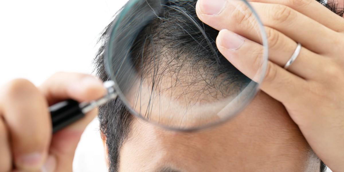risiken-haartransplantation